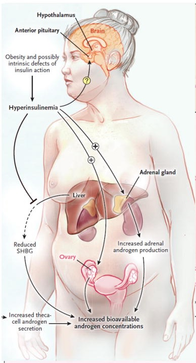 policisztás ovárium szindróma diéta